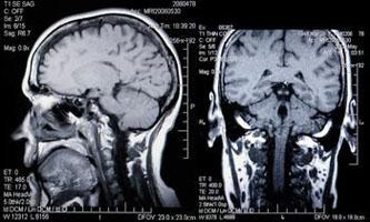 МРТ исследование головного мозга с контрастом