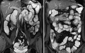 МРТ снимок тонкого и толстого кишечника