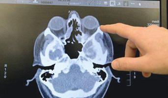 МРТ снимок пазух носа