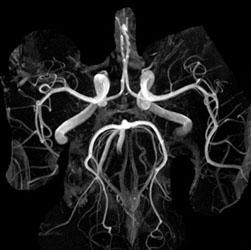 МРТ коронарных артерий сердца