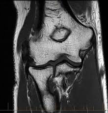 МРТ снимок локтя