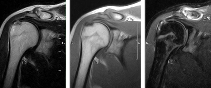 МРТ снимок плеча