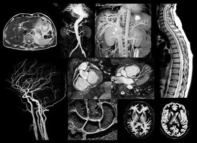 После проведения магнитно-резонансной томографии можно увидеть все органы в объеме