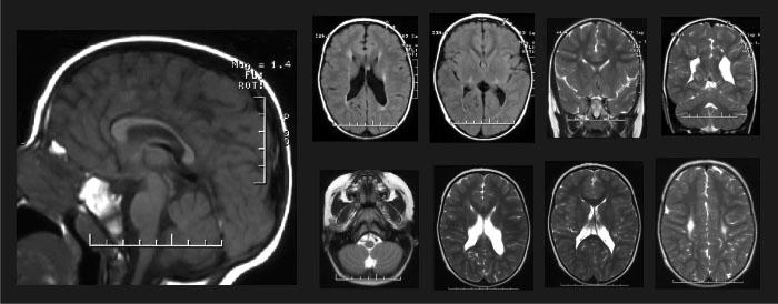 снимки головного мозга ребенка