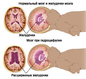 МРТ головного мозга грудничка