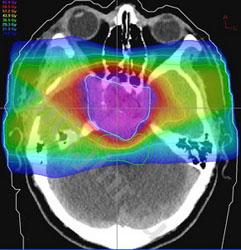 МРТ снимок мозга с контрастом