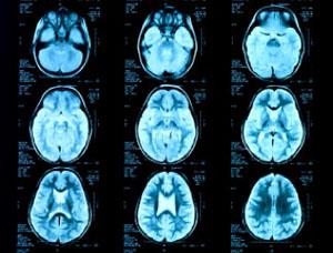 МРТ головного мозга - снимки срезов мозга